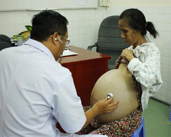 """Bác sĩ chuyên khoa 2 Nguyễn Văn Tiến: """"Bác sĩ có tâm và có tầm"""" của bệnh nhân ung thư"""